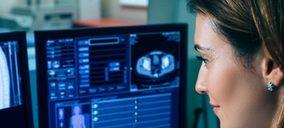 GE Healthcare y Wayra UK desarrollan un programa de apoyo a start ups de salud digital